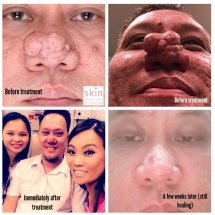 Watch Dr Pimple Popper Season 1 Online - Year of Clean Water