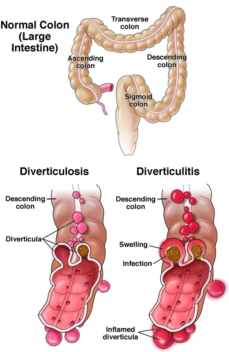 hight resolution of  dyk about diverticulitis by age 50 about 1 2 of people