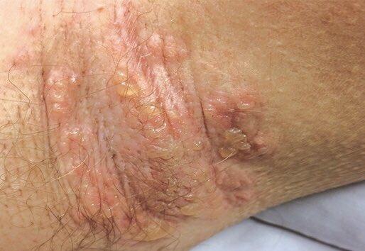 MedTweetorial: #Tweetorial Author: @Ashka_TxID  Type: #MedEd #GraphMed Specialty: #Dermatology #Derm #MedDerm #InfectiousDisease #ID Topics: #MRSA #Vancomycin #LinearIgABullousDisease #StaphScaldedSkinSyndrome
