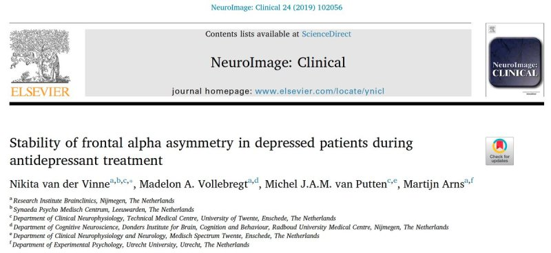Finally! 3d publication of my PhD-project: Stability of frontal alpha asymmetry in depressed patients. FAA robust marker resistant to state and drug effects;clinical utility in predicting SSRI response Results of hard work and collaboration @SynaedaPMC, @Brainclinics and @UTwente https://t.co/vstVJDflpk