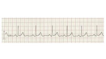 MedTweetorial: #Tweetorial Author: @DFyenbo  Type: #MedEd Specialty: #Cardiology #Cards Topics: #ECG #EKG #ECGInterpretation