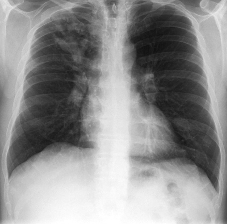 MedTweetorial: #Tweetorial Author: @DrJaredDyer  Type: #MedEd Specialty: #Pulmonology #Pulm Topics: #AsthmaMimic #BronchopulmonaryAspergillosis #ABPA #Aspergillosis #AspergillusFumigatus