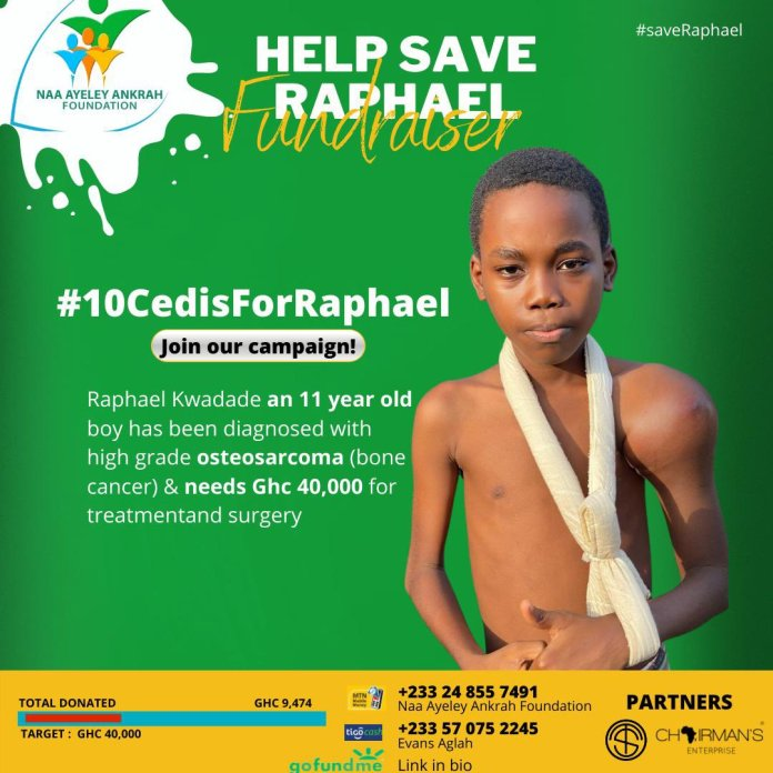 """Naa Ayeley Ankrah Foundation on Twitter: """"Join us! Let's all come together  and donate at least GH10.00 for our brother Raphael!!!🙏🏾🙏🏾🙏🏾🙏🏾❤️❤️  Mobile Money Numbers 0248557491 - Naa Ayeley Ankrah Foundation 0570752245 -"""