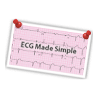 Ecg Made Easy Atul Luthra Pdf