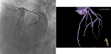 MedTweetorial: #Tweetorial Author: @Julio_Farjat    Type: #GraphicMed Specialty: #Cardiology #Cardio #CardioTwitter Topics: #CoronaryAngiogram #InvasiveCoronaryAngiography #CathLab #RadialFirst #CoronaryAnatomy