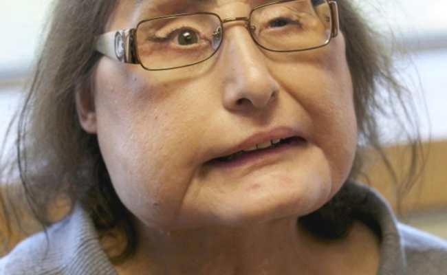 First Partial Face Transplant Recipient In U S Dies