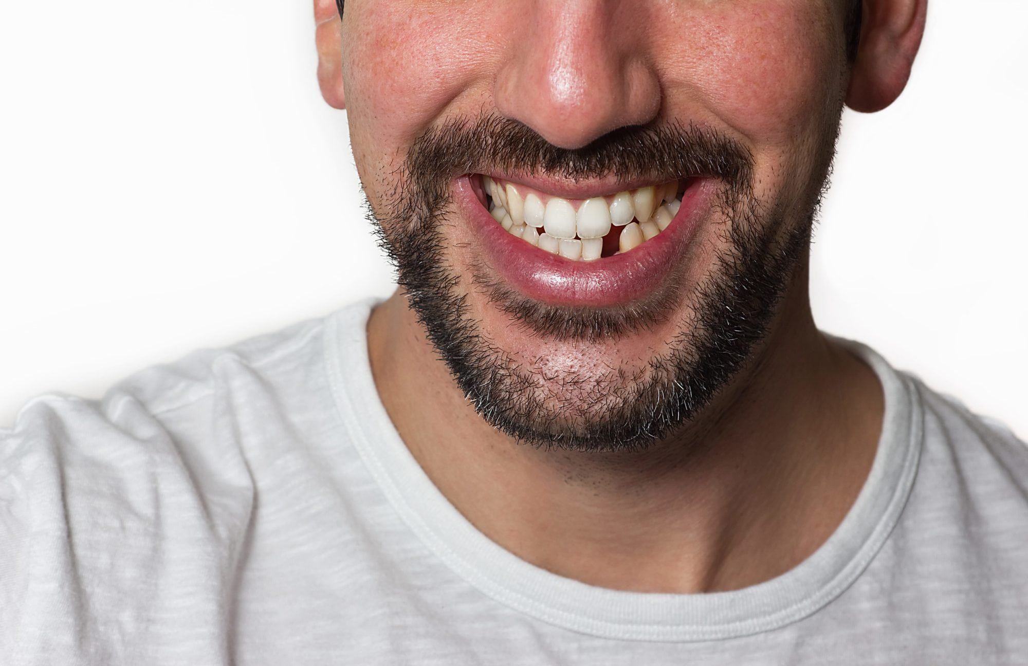 Why Replacing Lost Teeth is Important