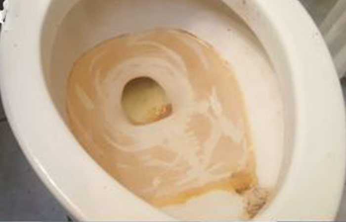what causes brown stains in toilet bowl