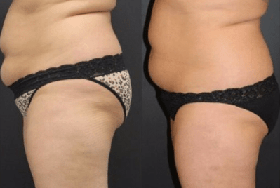 Coolsculpting beforeafter 4
