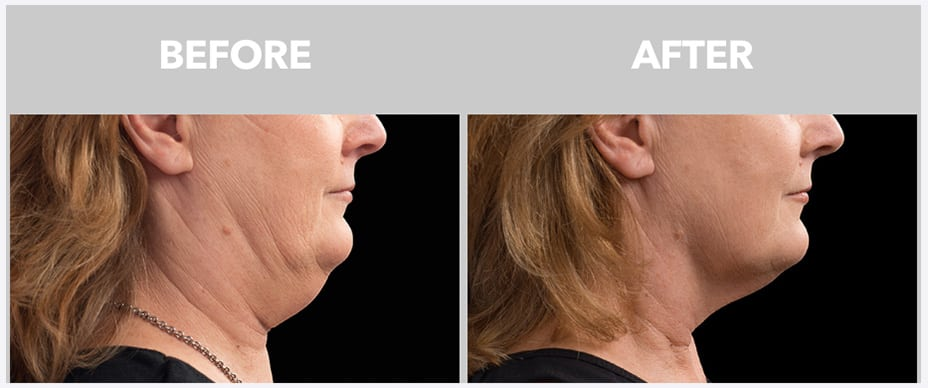 a woman's face before and after coolsculpting at peace.love.med.