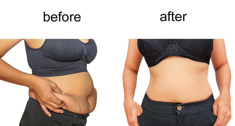 Cool sculpting vs. Liposuction
