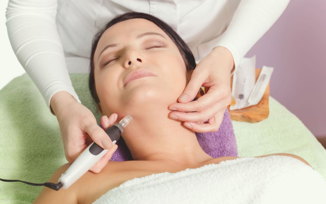 What is Microneedling and How Does It Work?