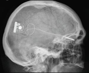 the-alpha-ims-subretinal-implant-300x247