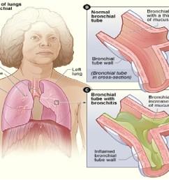 bronchitis grpahic 4 [ 1500 x 1125 Pixel ]