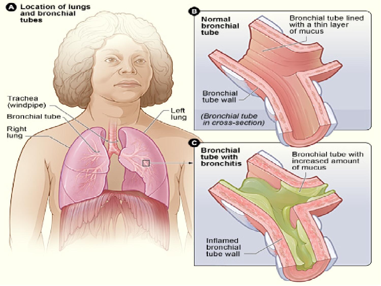 hight resolution of bronchitis grpahic 4