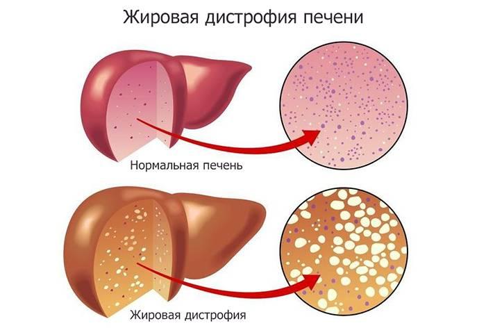 Жировые депозиты в телах позвонков. Какие изменения видны при МРТ. Заболевания, вызываемые жировой дегенерацией