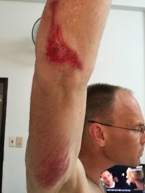 Body road rash