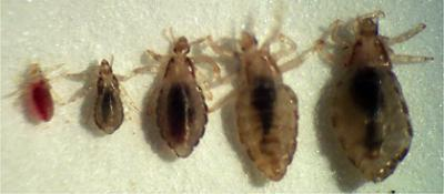 Scabies And Lice Pediatrics Clerkship The University
