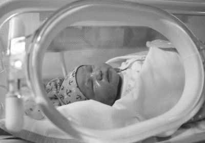 Which GERD Symptoms in NICU Babies Actually Need Treatment?