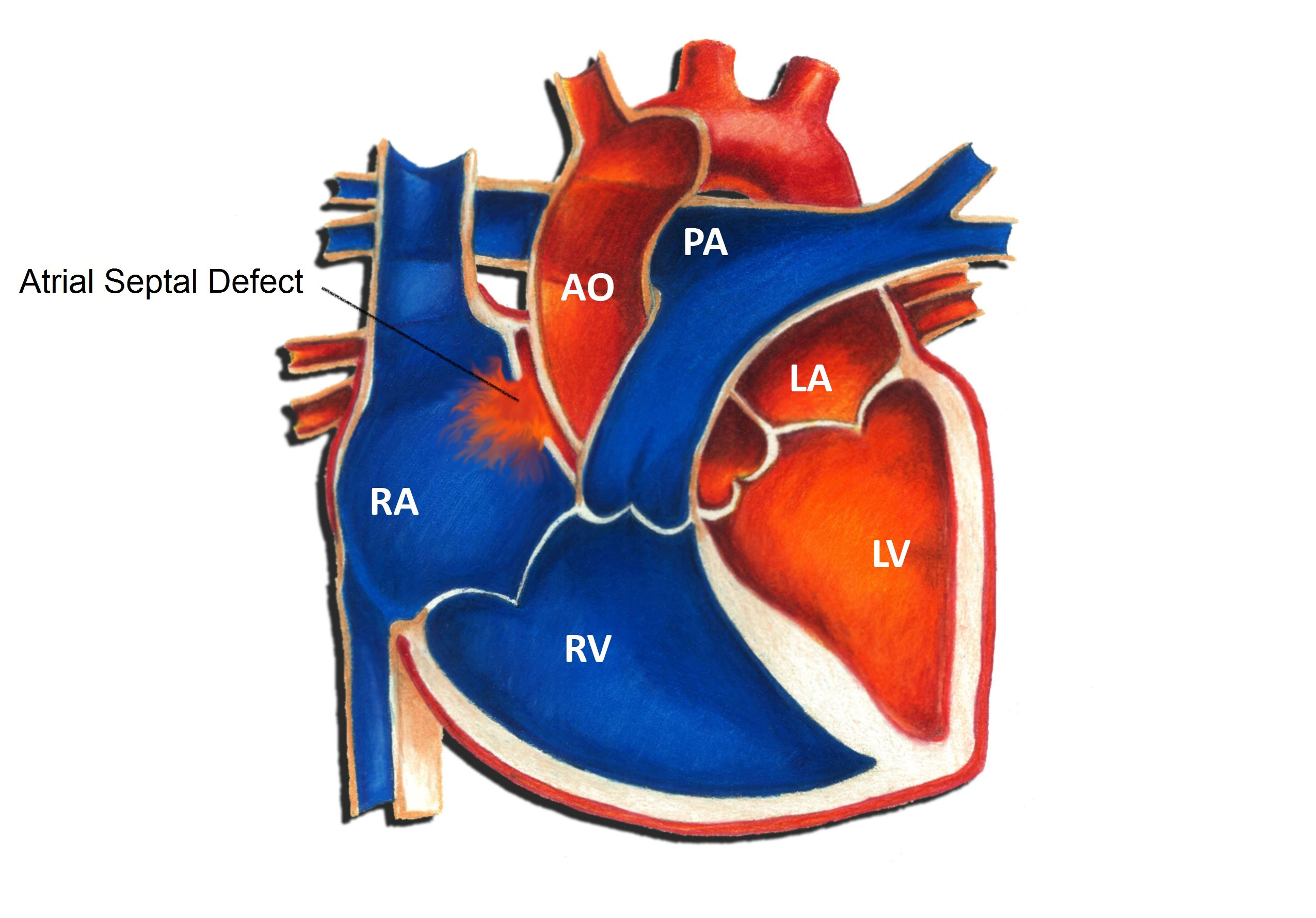 Atrial Septal Defect  Pediatric Heart Specialists