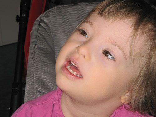 Синдром дауна признаки у новорожденных