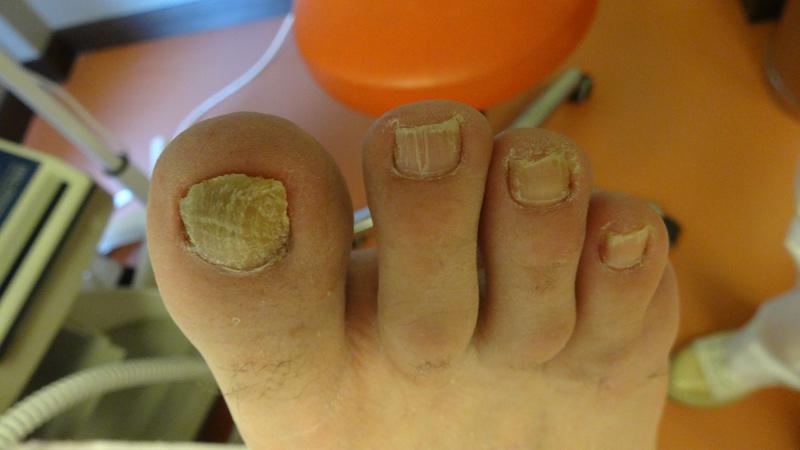 Διαβητικά νύχια πριν και μετά το pedicure με laser