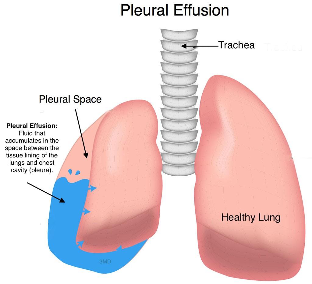 Recurrent Pneumonia in Children - Pediatric Pulmonologists