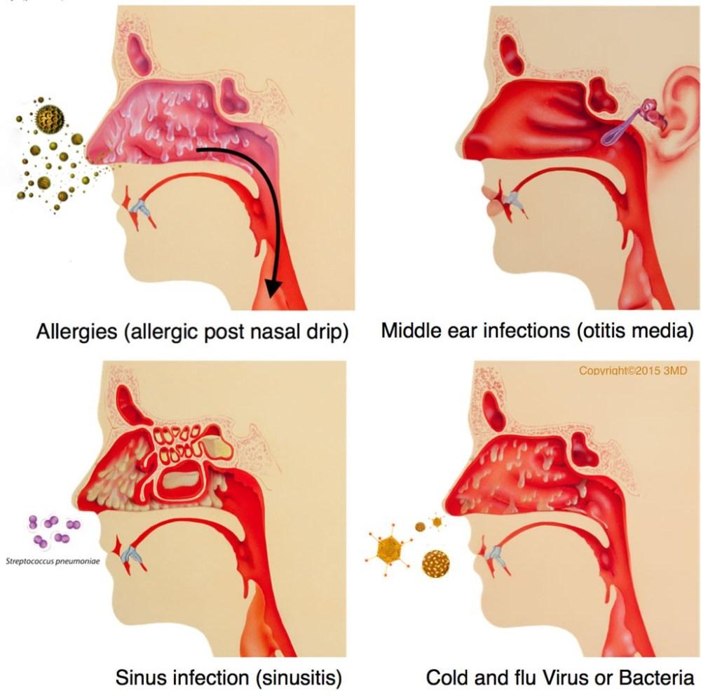 medium resolution of dr schochet pediatric pulmonologist treats post nasal drip