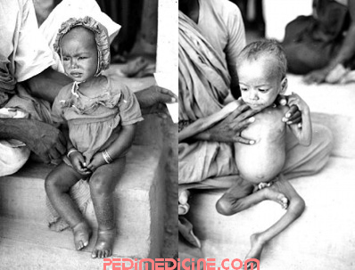 Malnourished Child of Kwashiorkor and Marasmus