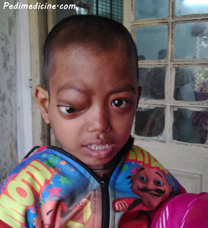 Neuroblastoma cancer of a child