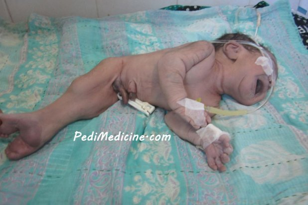 Sirenomelia, alternatively known as Mermaid Syndrome