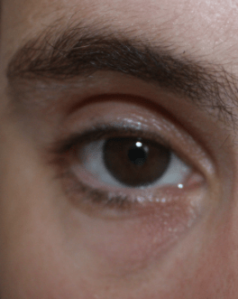 yeux8