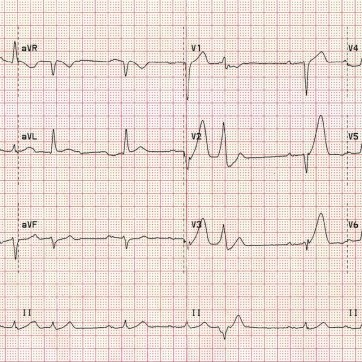 """Hyperacute Anterior STEMI: There are hyperacute T-waves in V2-6 (most marked in V2 and V3) with loss of R wave height.The rhythm is sinus with 1st degree AV block.There are premature atrial complexes (beat 4 on the rhythm strip) and multifocal ventricular ectopy (PVCs of two different types), indicating an """"irritable"""" myocardium at risk of ventricular fibrillation."""