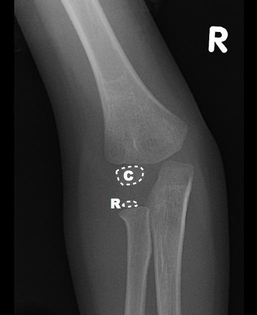 Pediatric Elbow Injuries Pediatric Emergency Playbook