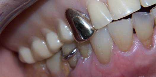 Arranca hoy programa de colocación de 95 prótesis dentales