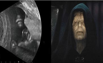 Star Wars… en su útero