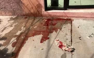 A navajazos lesionaron a un joven