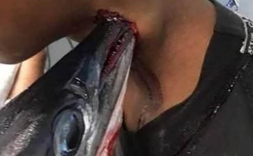 Le atravesó el cuello un pez espada