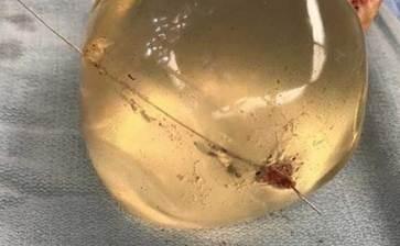 Le salvó la vida su implante de seno