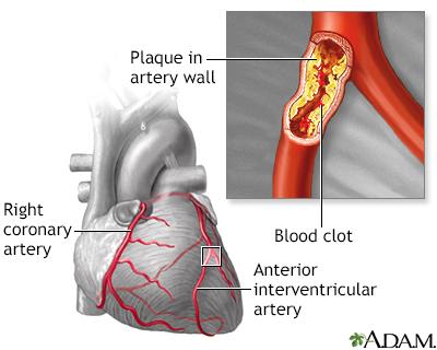 interior heart diagram 1996 dodge dakota wiring diabetes - type 1 penn state hershey medical center
