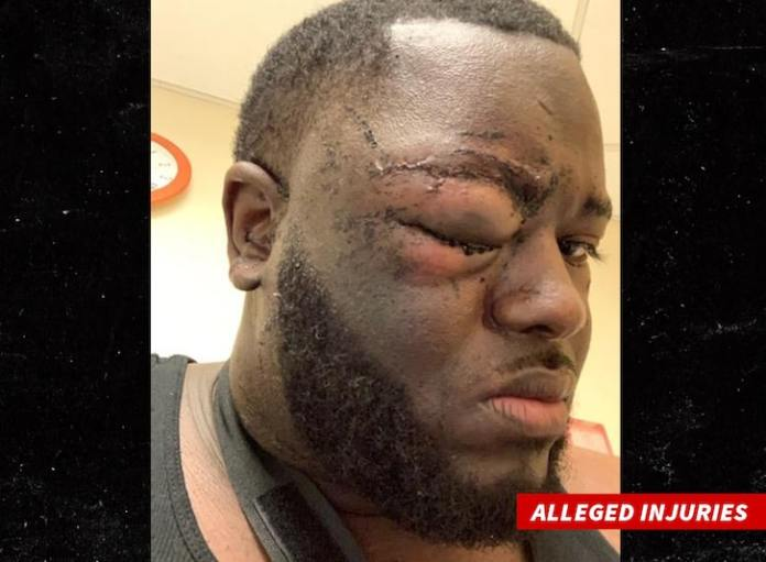 Aaron Donald Surveillance Video Shows NFL Star Was Attacked with Bottle, Lawyer Claims