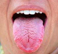 Worlds_ugliest_tongue