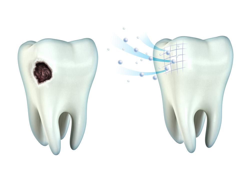 Anggapan Remeh yang Menjadi Penyebab Gigi Berlubang