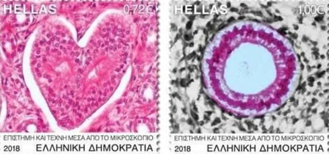 Τα πρωτοποριακά γραμματόσημα του μικροσκοπίου που μεταλλάσσουν την Ιατρική Επιστήμη σε Τέχνη!