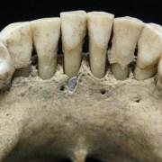 Πώς βρέθηκε ένας ημιπολύτιμος λίθος στην οδοντοστοιχία μιας μοναχής του μεσαίωνα;