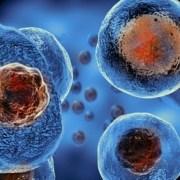 Ανακάλυψη ελπίδας! Βρέθηκε κύτταρο που εξοντώνει τον καρκίνο