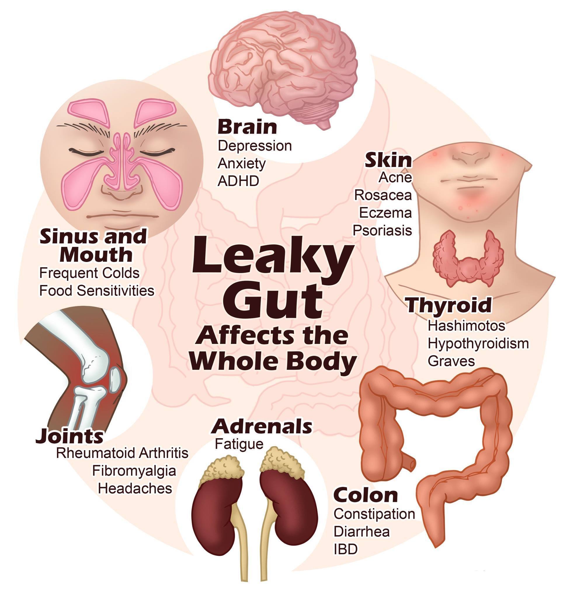LEAKY-GUT.