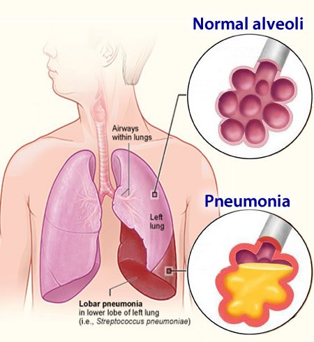 Sintomas da Pneumonia