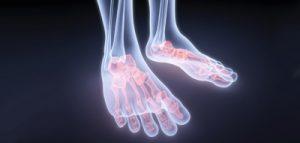 Причины развития болезни дойчлендера маршевого перелома