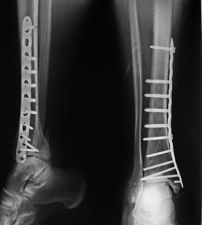 Удаление металлоконструкций после остеосинтеза удаление спиц пластин после перелома